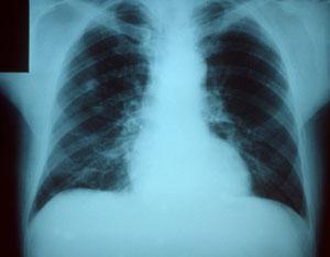 radiografía neumonía